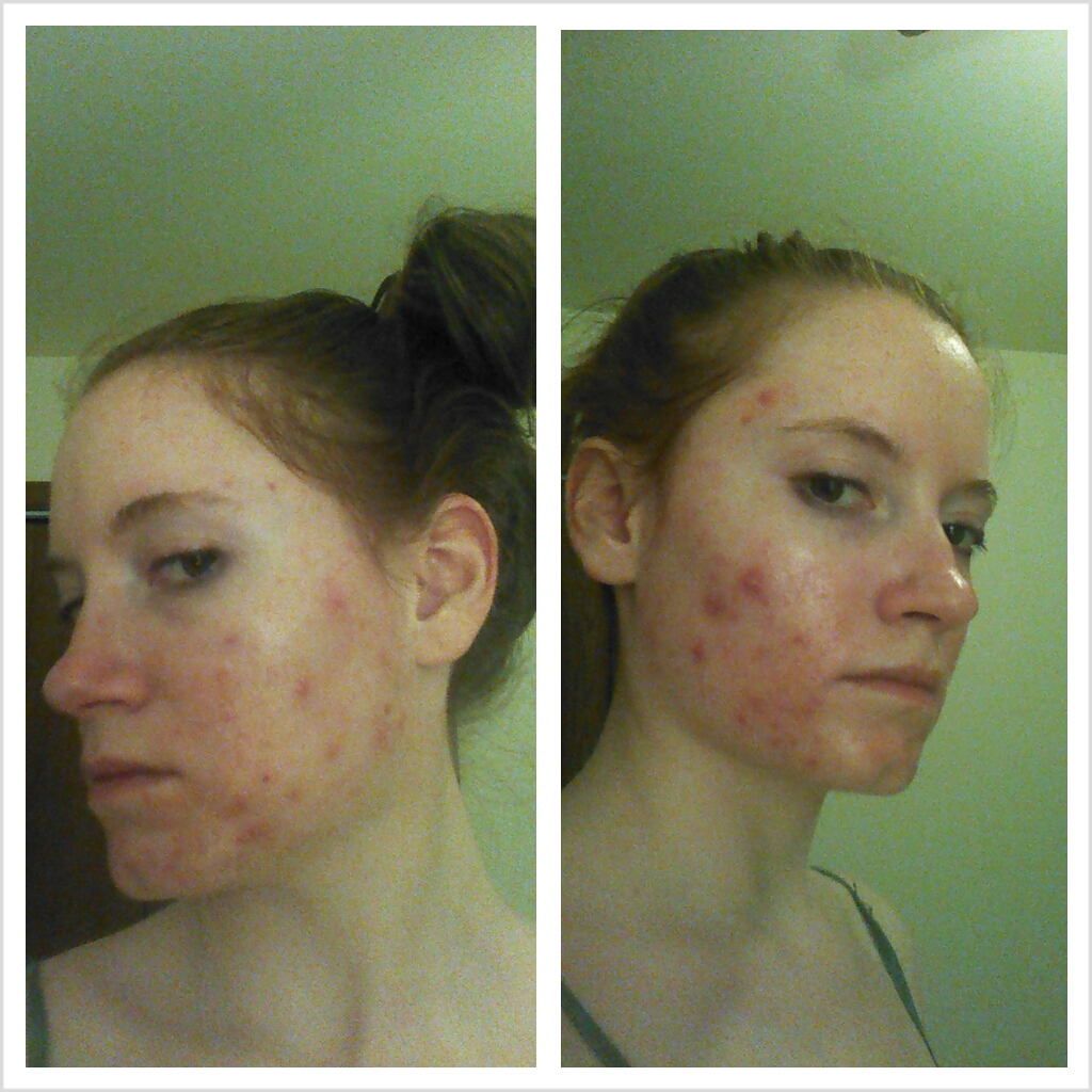 Acne Amp Accutane Red Headed Journeys