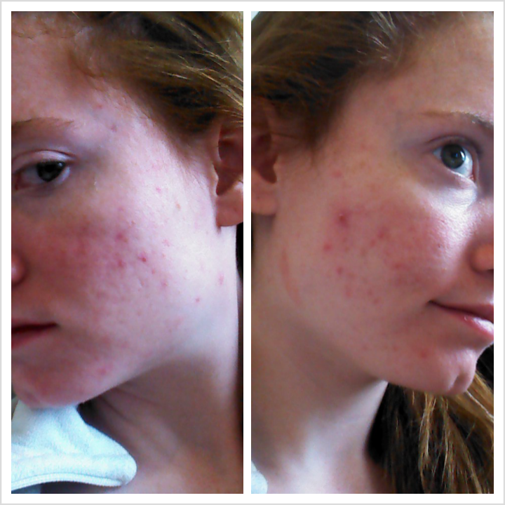 Next day delivery accutane